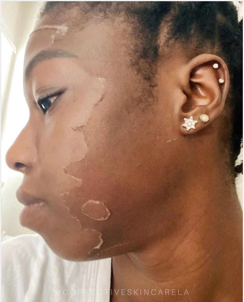 Corrective-Skincare-LA-Custom-ProPeel-Chemical-Peeling-Results