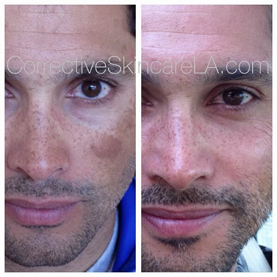 Corrective-Skincare-Skin-Discoloration-Before-and-After