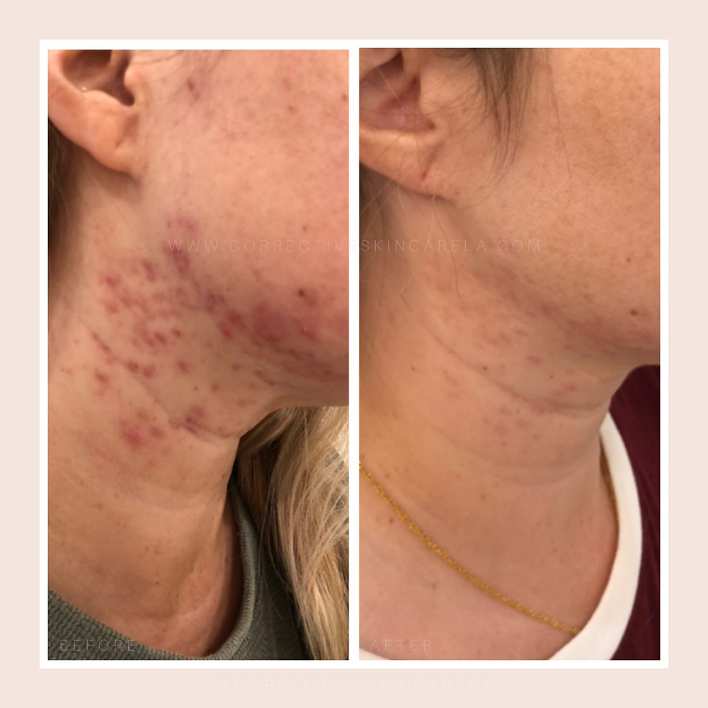 Corrective-Skincare-LA-Acne-Before-After-Chemical-Peel-Results