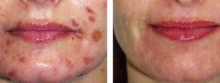 How Long Will It Take To Clear My Acne?