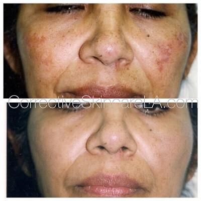 Corrective-Skincare-Skin-Discoloration-Reduce-Hyperpigmentation