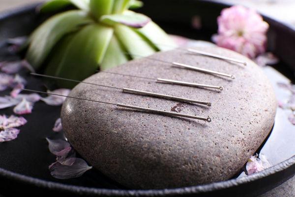 лечение традиционной китайской медициной, центр акупунктуры, центр иглоукалывания, клиника иглоукалывания, клиника традиционной китайской медицины