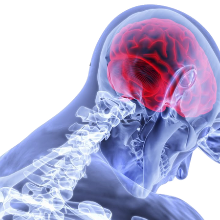 CONCUSSIONS - SYMPTOMS AND RECOVERY