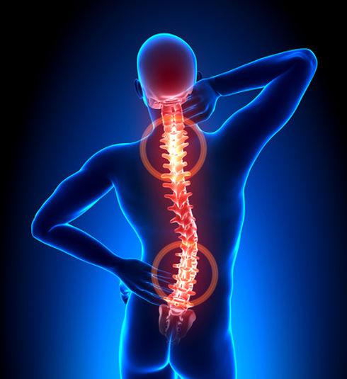 dsic problems and sciatica.jpg