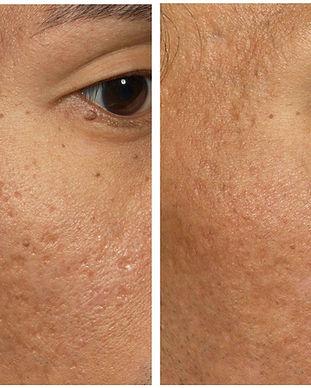 laser acne hawaii