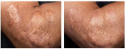 Laser skin care honolulu