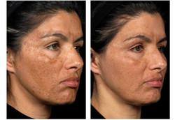 laser honolulu skin care