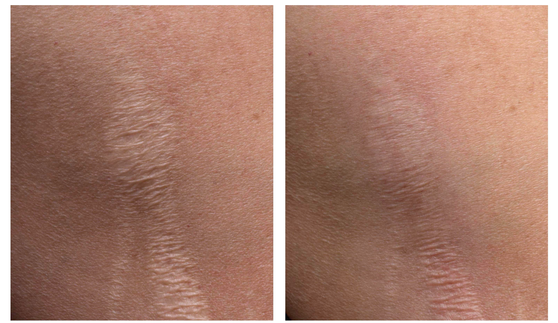 laser stretch marks honolulu