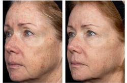 laser brown spots honolulu
