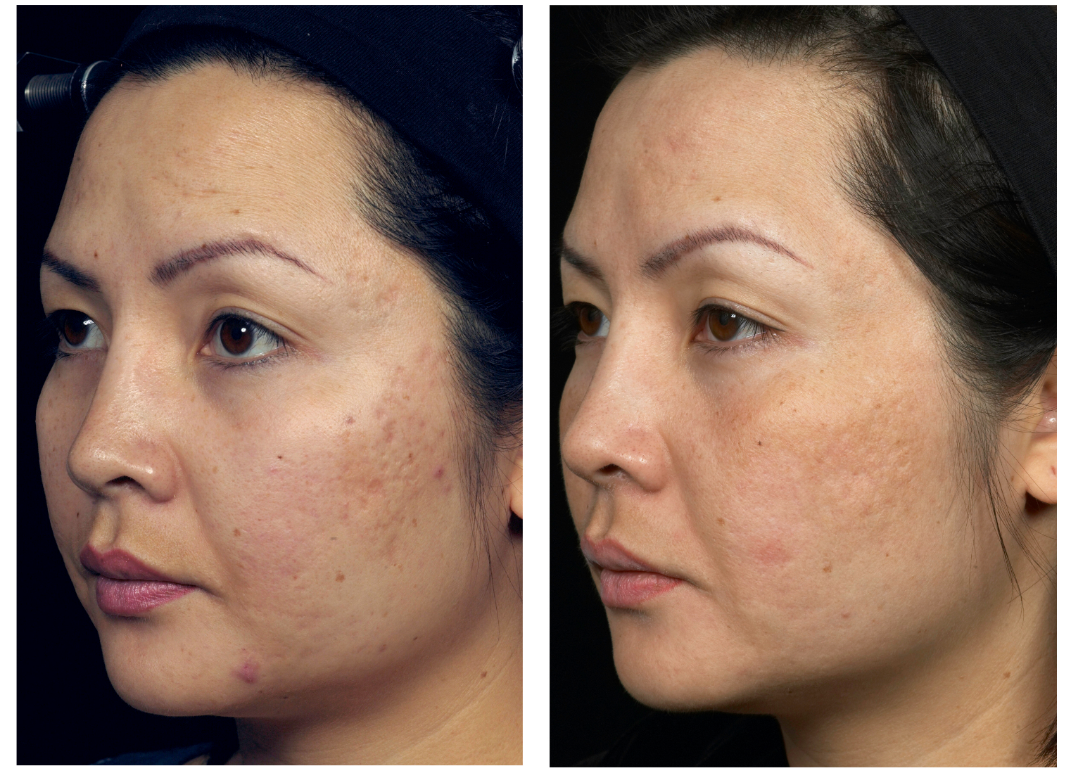 laser acne scars hawaii