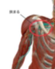 腕のしびれの原因