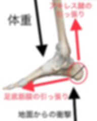 踵 痛 シーバー病 尼崎 スポーツ
