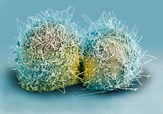 HeLa-cells-dividing-1.jpg