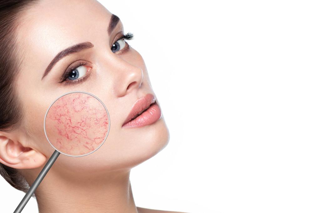 Rosacea Types Symptoms Treatment