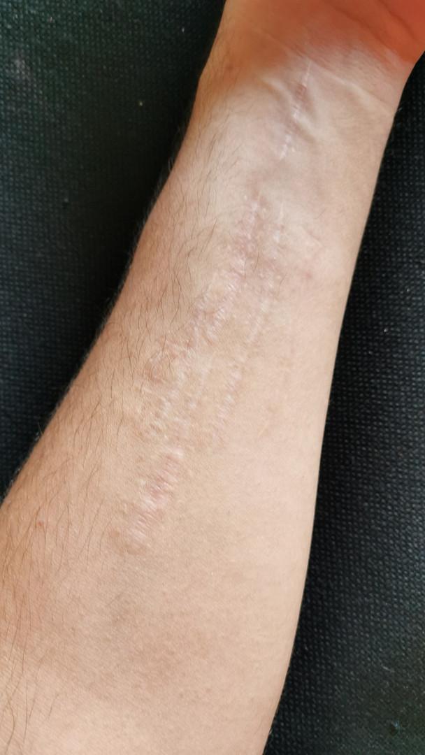 Cicatrisation après traitement au microneedling.