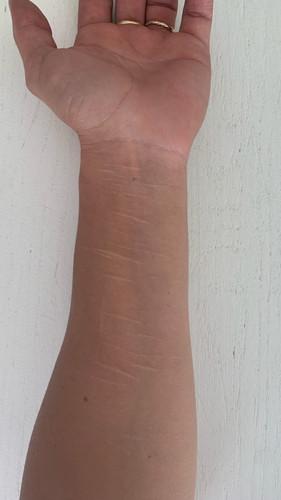 Cicatrisation après traitement microneedling.