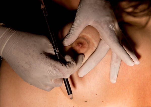 Post opératoire et mastectomie