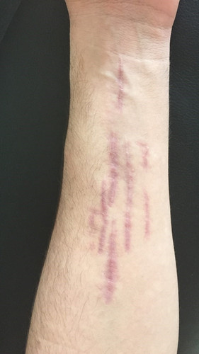 Lacération poignée avant bras avant intervention.