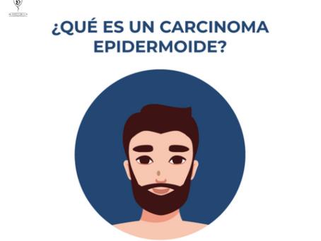 ¿QUÉ ES UN CARCINOMA DE CÉLULAS ESCAMOSAS O EPIDERMOIDE?