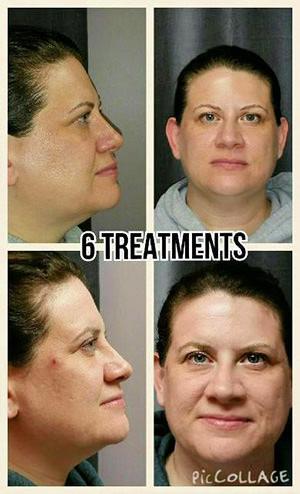 6-treatments.jpg