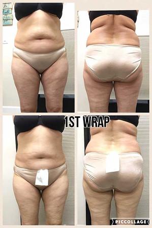 1st Wrap