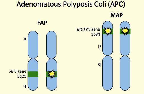 мутации, семейный аденоматозный полипоз, онкология, рак
