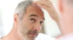 guy with hair loss.jpg