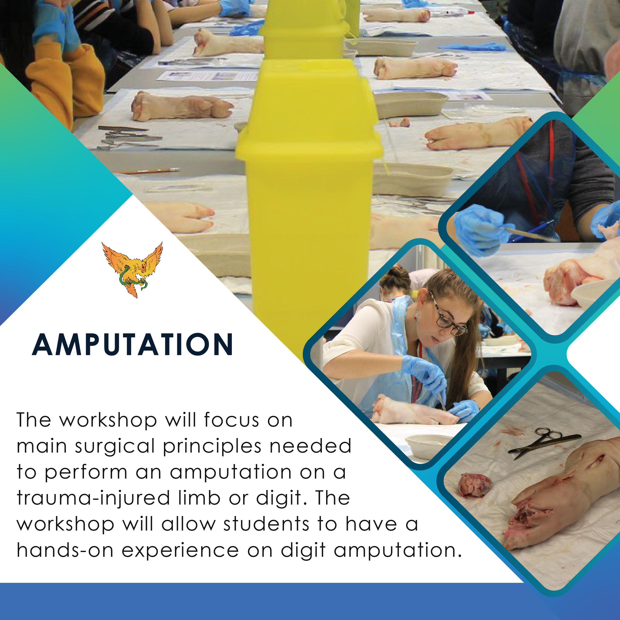 Amputation Square