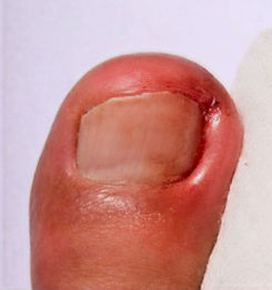 toenail%20ingrown_edited.jpg