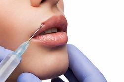 Injectable-Dermal-Filler-1.jpg