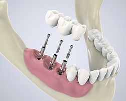 dental-implant.jpg