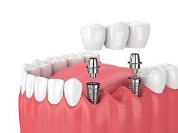 Implants-with-Dental-bridge.jpg