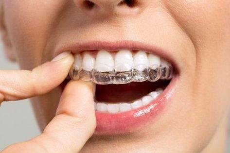 سينا تقويم الاسنان بالتقسيط