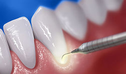 laser-periodontal-therapy.jpg