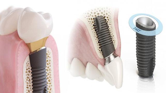 ASTRA-TECH-Implant-System.jpg