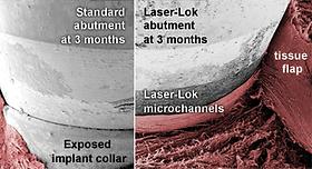laserlok_compare1.png