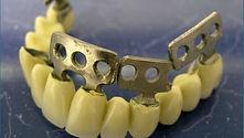 plastinchatye-zubnye-implantaty2.jpg