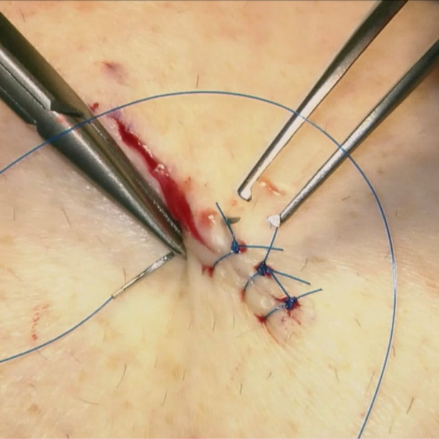 Interrupted cutaneous suture