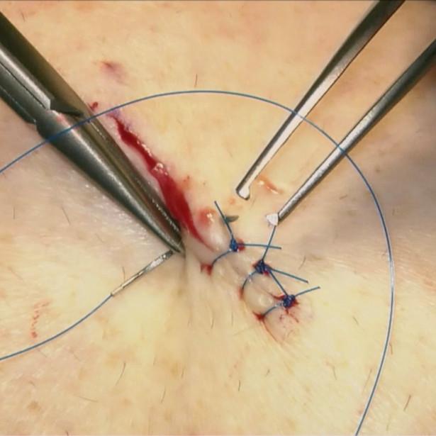 Interrupted cutaneous suture