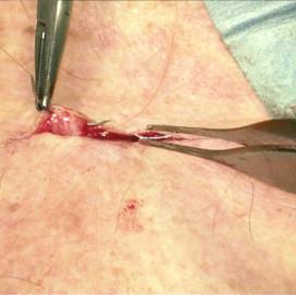 Continuous intracuticular suture