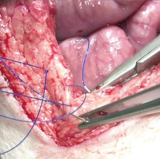 Closure of the abdominal fascia