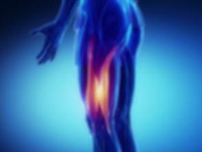 strain muscle animation.jpg