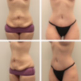 Tummy Tuck1 2.png