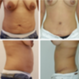 Tummy Tuck 1.png