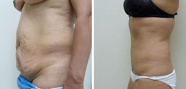Tummy Tuck 1.jpg