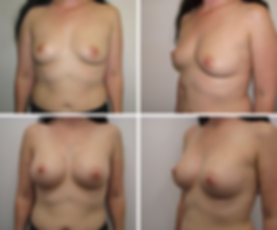 Breast augmentation - Patient SL.png