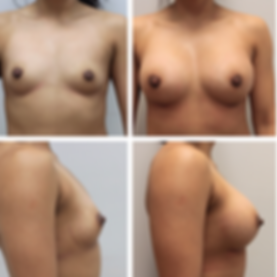 Breast augmentation2.png