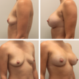 Breast augmentation1 2.png