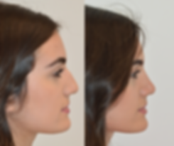 Rhinoplasty - Patient AB2.png