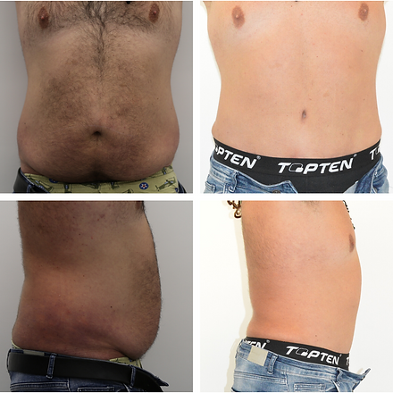 Abdominoplasty lipo 9 months.png